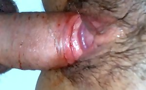 Man has a first time bloody sex thither girl - a hot defloration video